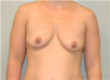 Breast Augmentation Before Photo by Elisa Burgess, MD; Lake Oswego, OR - Case 26942
