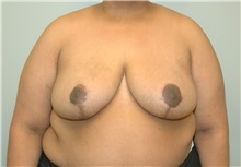 Breast Reduction After Photo by Elisa Burgess, MD; Lake Oswego, OR - Case 26947