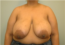 Breast Reduction Before Photo by Elisa Burgess, MD; Lake Oswego, OR - Case 26947