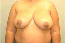 Breast Reduction After Photo by Elisa Burgess, MD; Lake Oswego, OR - Case 26948
