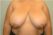 Breast Reduction Before Photo by Elisa Burgess, MD; Lake Oswego, OR - Case 26948