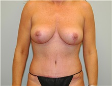 Breast Lift After Photo by Elisa Burgess, MD; Lake Oswego, OR - Case 27297