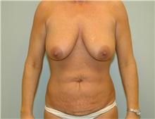 Breast Lift Before Photo by Elisa Burgess, MD; Lake Oswego, OR - Case 27297
