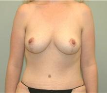 Tummy Tuck After Photo by Elisa Burgess, MD; Lake Oswego, OR - Case 27299