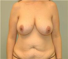 Tummy Tuck Before Photo by Elisa Burgess, MD; Lake Oswego, OR - Case 27299