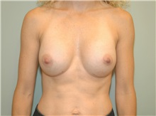 Breast Augmentation After Photo by Elisa Burgess, MD; Lake Oswego, OR - Case 27301