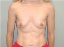 Breast Augmentation Before Photo by Elisa Burgess, MD; Lake Oswego, OR - Case 27301