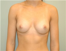 Breast Augmentation After Photo by Elisa Burgess, MD; Lake Oswego, OR - Case 27304