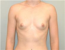 Breast Augmentation Before Photo by Elisa Burgess, MD; Lake Oswego, OR - Case 27304