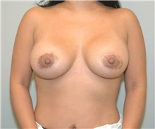 Breast Augmentation After Photo by Elisa Burgess, MD; Lake Oswego, OR - Case 27306