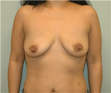 Breast Augmentation Before Photo by Elisa Burgess, MD; Lake Oswego, OR - Case 27306