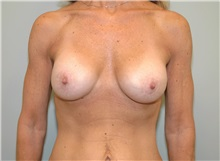 Breast Lift After Photo by Elisa Burgess, MD; Lake Oswego, OR - Case 27307