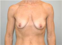 Breast Lift Before Photo by Elisa Burgess, MD; Lake Oswego, OR - Case 27307
