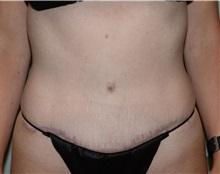 Tummy Tuck After Photo by Elisa Burgess, MD; Lake Oswego, OR - Case 31239