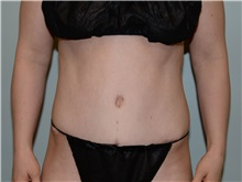 Tummy Tuck After Photo by Elisa Burgess, MD; Lake Oswego, OR - Case 31243
