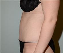 Tummy Tuck After Photo by Elisa Burgess, MD; Lake Oswego, OR - Case 31243