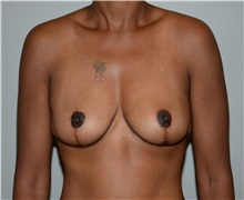 Breast Reduction After Photo by Elisa Burgess, MD; Lake Oswego, OR - Case 31244