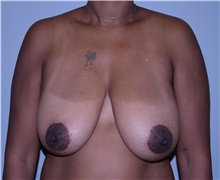 Breast Reduction Before Photo by Elisa Burgess, MD; Lake Oswego, OR - Case 31244