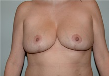 Breast Reduction After Photo by Elisa Burgess, MD; Lake Oswego, OR - Case 31247