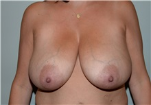 Breast Reduction Before Photo by Elisa Burgess, MD; Lake Oswego, OR - Case 31247