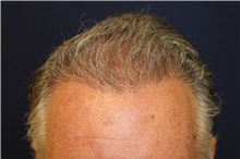 Hair Transplant After Photo by Richard Chaffoo, MD; La Jolla, CA - Case 35349