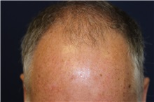 Hair Transplant Before Photo by Richard Chaffoo, MD; La Jolla, CA - Case 35349