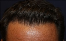 Hair Transplant After Photo by Richard Chaffoo, MD; La Jolla, CA - Case 35350