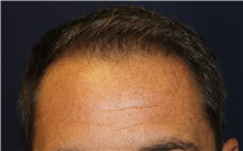 Hair Transplant Before Photo by Richard Chaffoo, MD; La Jolla, CA - Case 35350