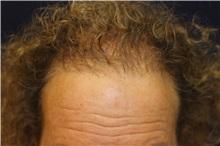 Hair Transplant After Photo by Richard Chaffoo, MD; La Jolla, CA - Case 35353