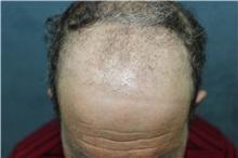 Hair Transplant Before Photo by Richard Chaffoo, MD; La Jolla, CA - Case 35353