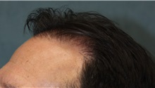 Hair Transplant After Photo by Richard Chaffoo, MD; La Jolla, CA - Case 35354