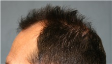 Hair Transplant Before Photo by Richard Chaffoo, MD; La Jolla, CA - Case 35354