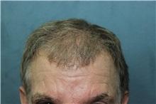 Hair Transplant After Photo by Richard Chaffoo, MD; La Jolla, CA - Case 35355