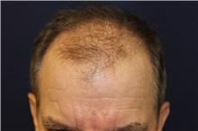 Hair Transplant Before Photo by Richard Chaffoo, MD; La Jolla, CA - Case 35355