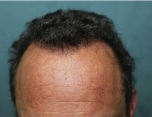 Hair Transplant After Photo by Richard Chaffoo, MD; La Jolla, CA - Case 35356