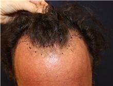 Hair Transplant Before Photo by Richard Chaffoo, MD; La Jolla, CA - Case 35356
