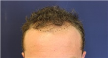 Hair Transplant Before Photo by Richard Chaffoo, MD; La Jolla, CA - Case 35358