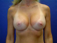 Breast Augmentation After Photo by Lane Smith, MD; Las Vegas, NV - Case 27036