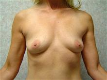 Breast Augmentation Before Photo by Lane Smith, MD; Las Vegas, NV - Case 27036