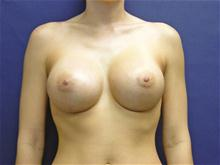Breast Augmentation After Photo by Lane Smith, MD; Las Vegas, NV - Case 27039