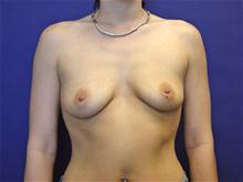 Breast Augmentation Before Photo by Lane Smith, MD; Las Vegas, NV - Case 27039