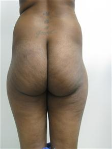 Buttock Implants Before Photo by Lane Smith, MD; Las Vegas, NV - Case 27044