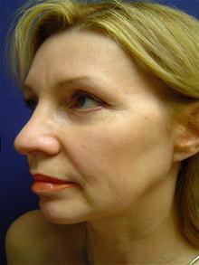 Eyelid Surgery After Photo by Lane Smith, MD; Las Vegas, NV - Case 27046