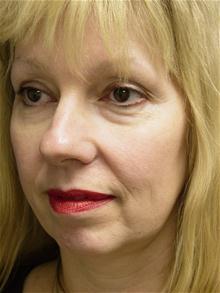 Eyelid Surgery Before Photo by Lane Smith, MD; Las Vegas, NV - Case 27046