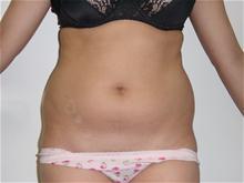 Liposuction Before Photo by Lane Smith, MD; Las Vegas, NV - Case 27048