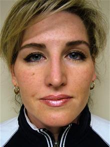 Rhinoplasty After Photo by Lane Smith, MD; Las Vegas, NV - Case 27049