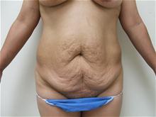 Tummy Tuck Before Photo by Lane Smith, MD; Las Vegas, NV - Case 27052