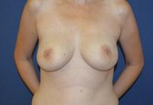 Breast Reconstruction After Photo by Matthew Kilgo, MD, FACS; Garden City, NY - Case 28529