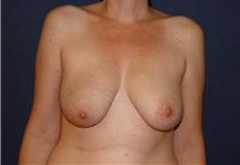 Breast Reconstruction Before Photo by Matthew Kilgo, MD, FACS; Garden City, NY - Case 28529