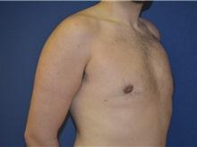 Male Breast Reduction After Photo by Matthew Kilgo, MD, FACS; Garden City, NY - Case 28539